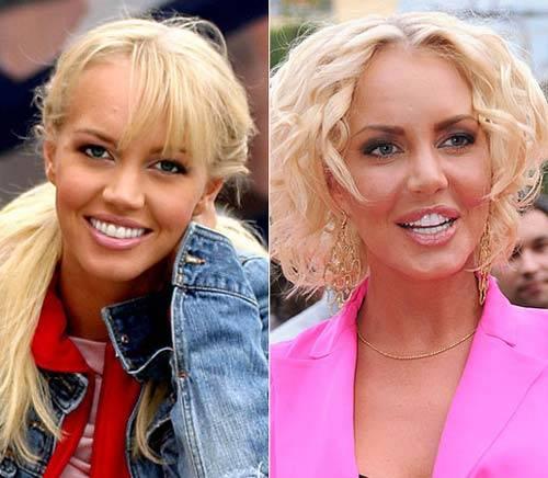 фото маша малиновская до и после операции